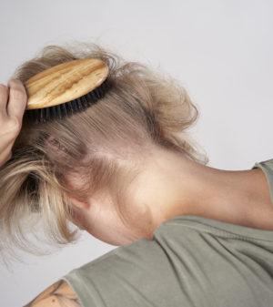 Kopfhaut Bürsten